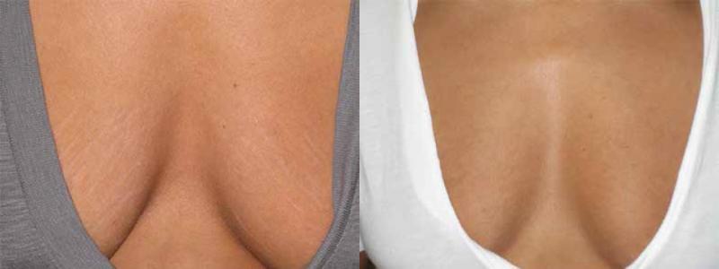 Растяжки на грудях у подростков как избавиться