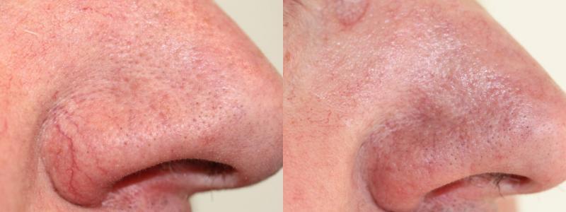 Die Pigmentation der Haut auf der Person die Behandlung